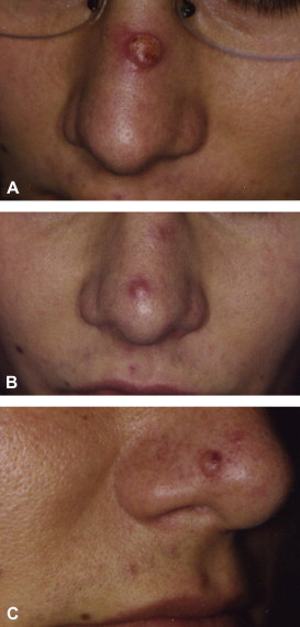Follicular Lymphomatoid Papulosis