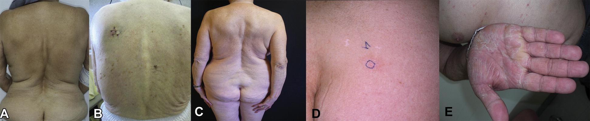 Sézary syndrome
