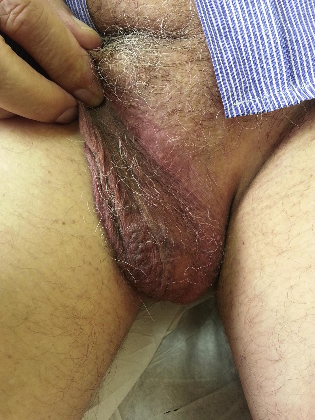 red_genital.jpg