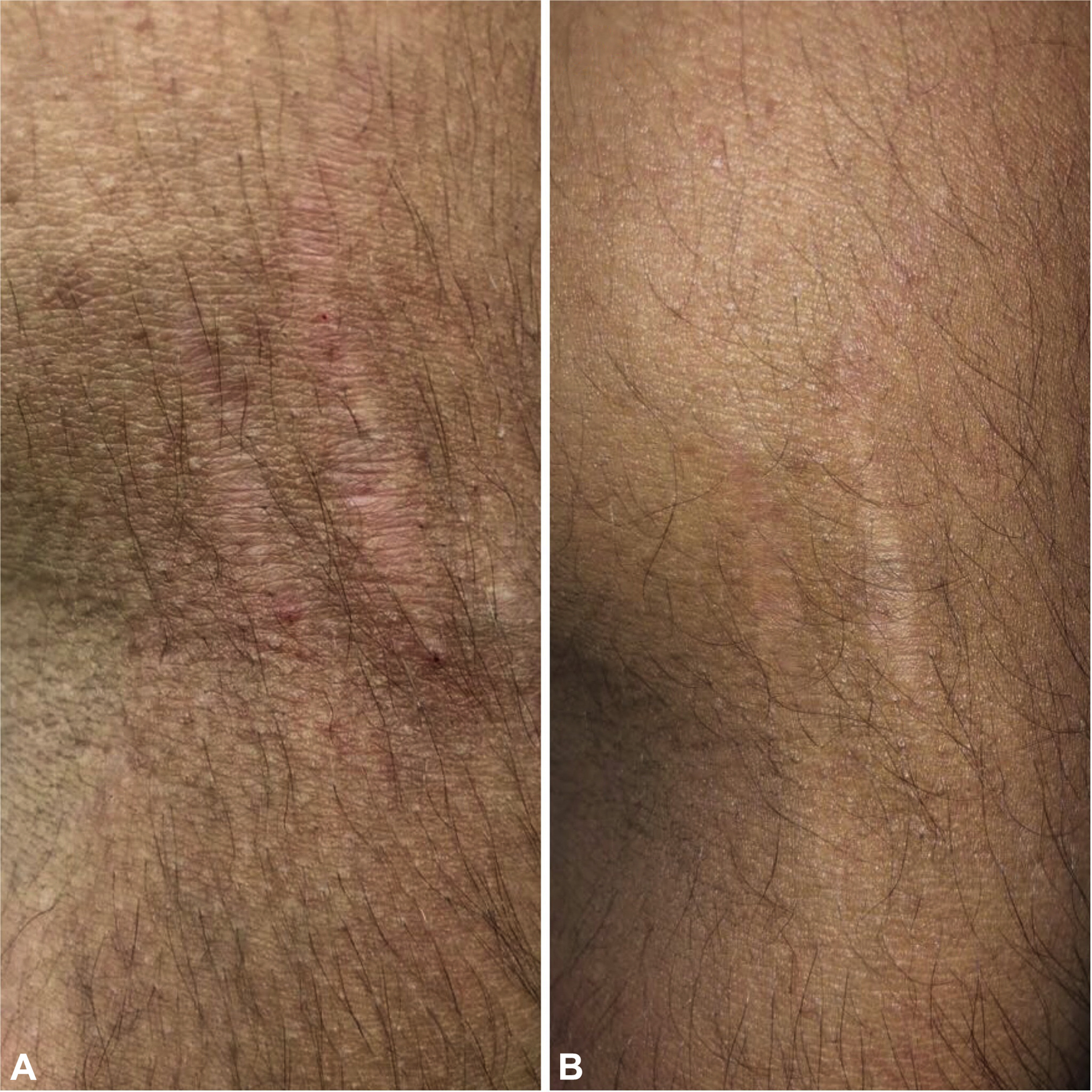 Striae due to bartonella is a stretch | American Academy of Dermatology