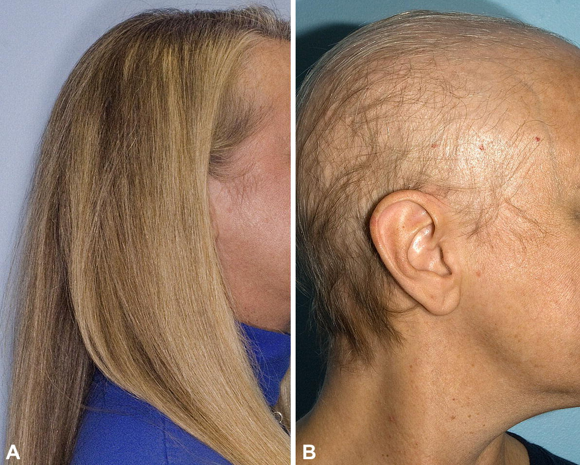 Chemotherapy-induced alopecia