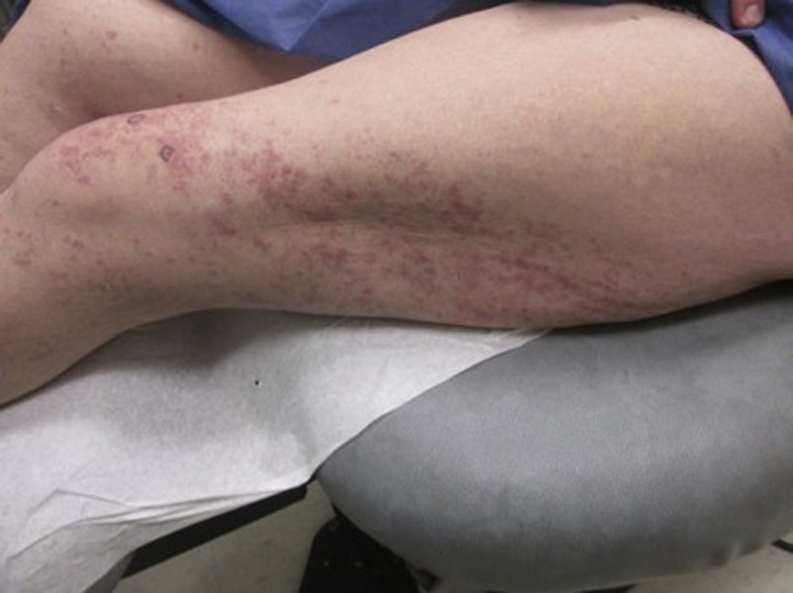 Cutaneous lupus
