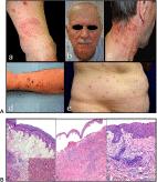Eosinophilic dermatosis
