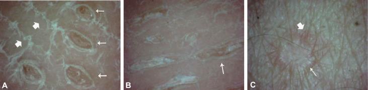 Lichen nitidus