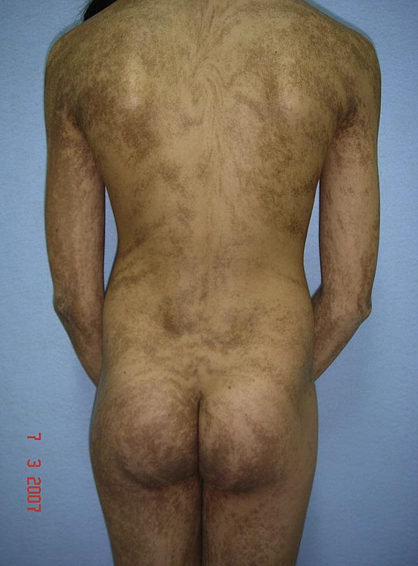 Whorled Nevoid Hypermelanosis