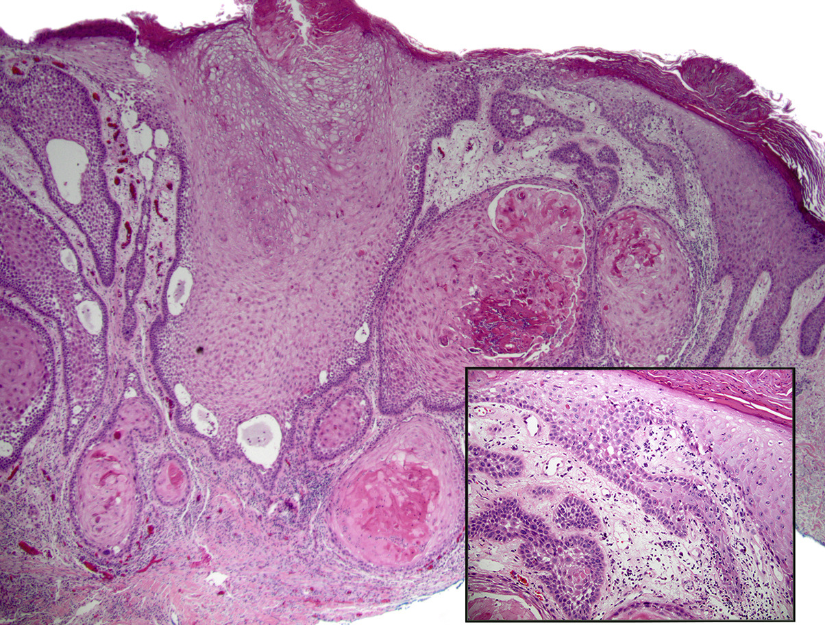 acantholytic squamous cell carcinomas
