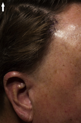 alopecia thyroid