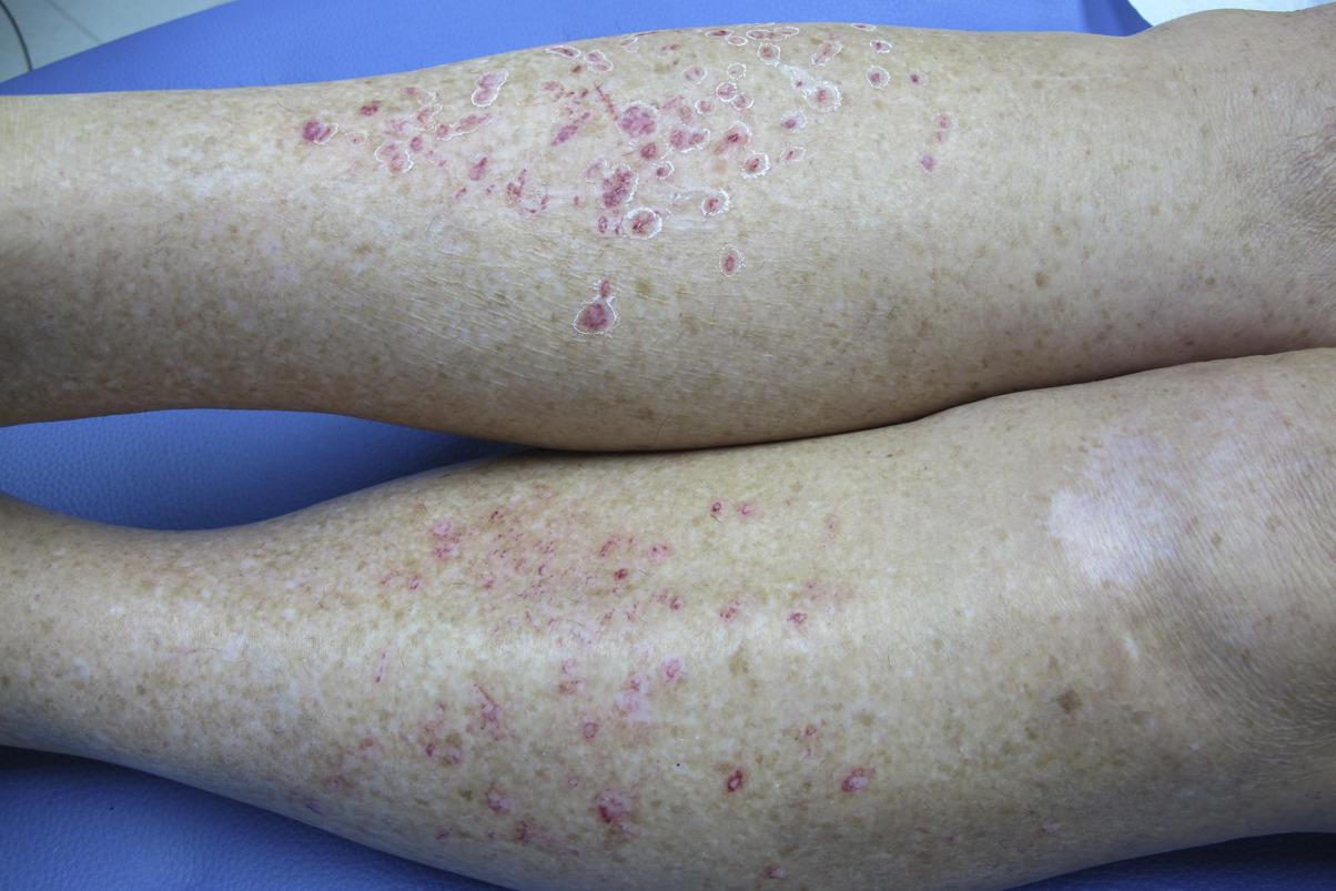 idiopathic guttate hypomelanosis