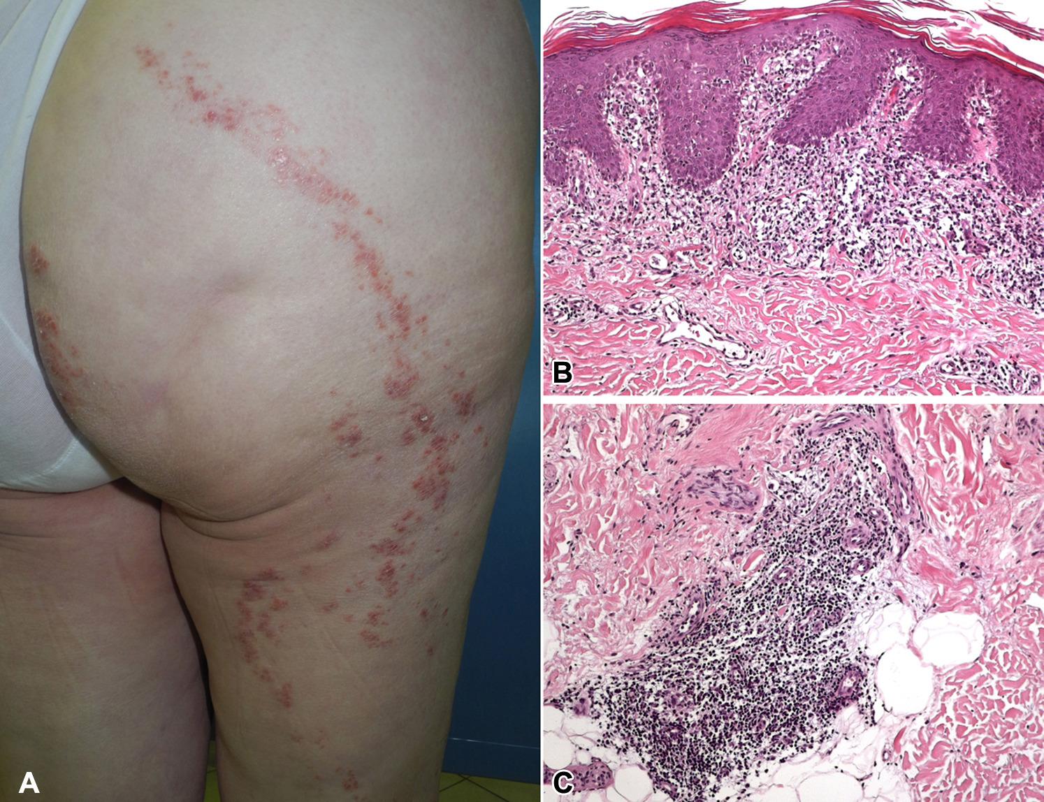 lichen striatus