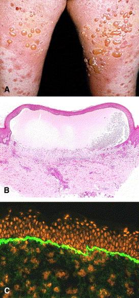 pemphigoid-gestationis.jpg