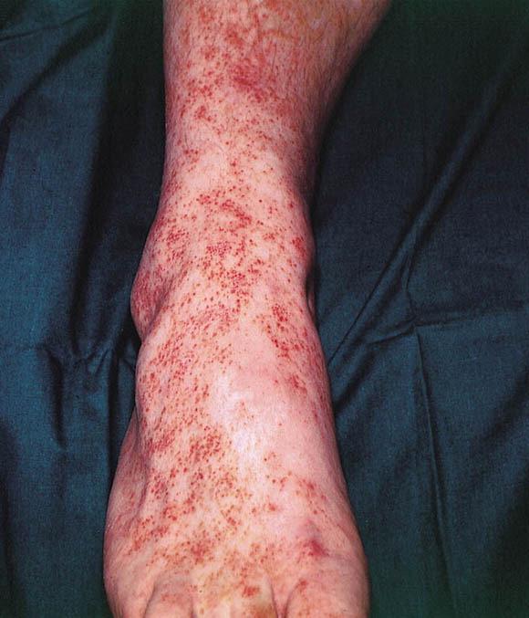 pigmented-purpuric-dermatosis.jpg
