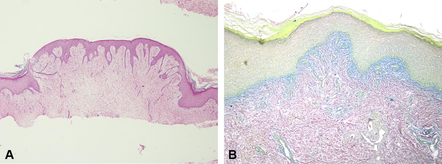 pretibial myxedema