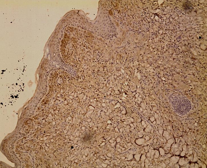 juvenile xanthogranuloma