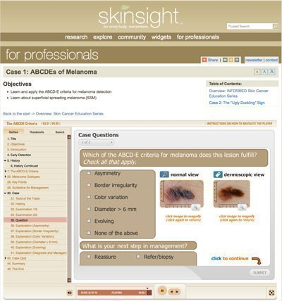 skin cancer quiz