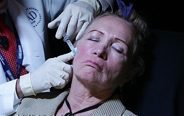 Dermatologist injects filler.