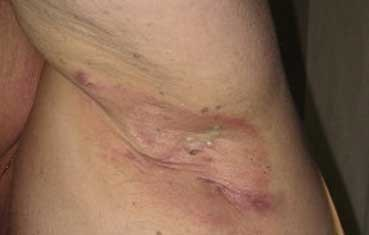 sores under armpits