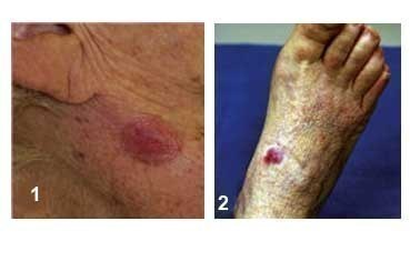 two people with Merkel cell carcinoma