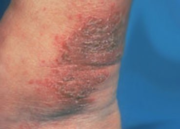 Nummular dermatitis on ankle