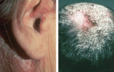 scalp psoriasis behind the ear, on the scalp