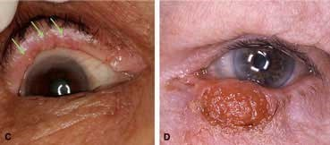 Sebaceous carcinoma on eyelids