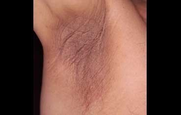 acanthosis nigricans on armpit