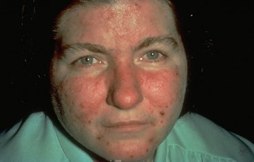 acne-like rosacea