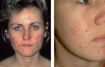 women with acne Adult acne. The number of adults who have acne is growing.