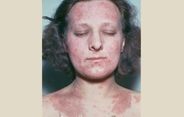 Widespread eczema on face and neck
