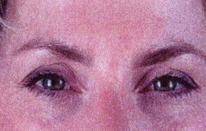 woman's face after botox