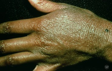 adult hand with eczema