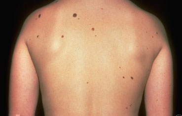 Atypical moles on back