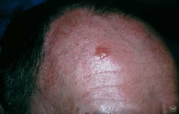 basal cell cancer on man's head