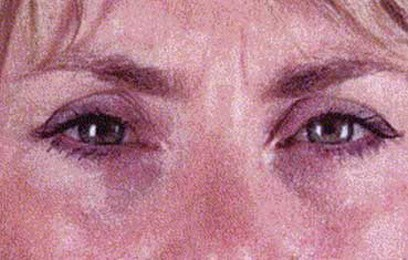 woman's face before botox