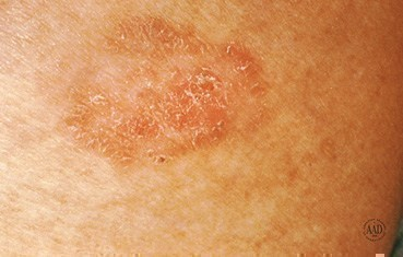 Squamous cell carcinoma: Signs and symptoms