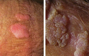 pictures of genital warts