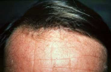 after hair loss