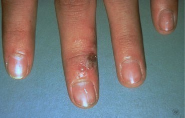 herpes on fingers