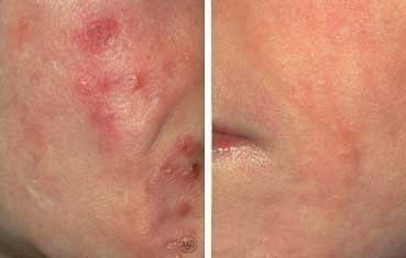 before and after isotretinoin