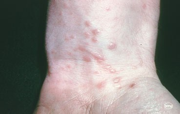 lichen planus on wrist