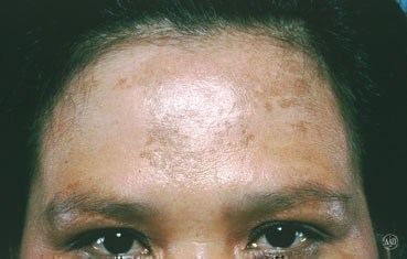 melasma on woman's forehead