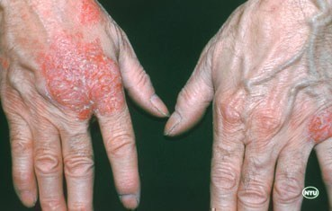Nummular dermatitis rash on hands