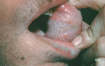 lichen planus on tongue