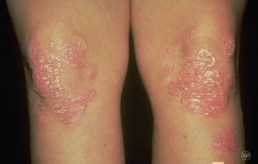Plaque psoriasis on knees