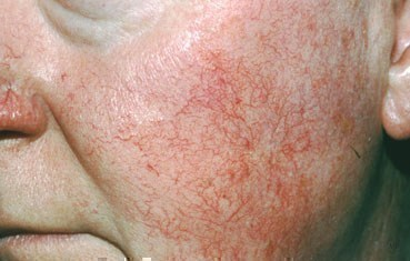 Acanthosis Nigricans Photos - Dermatology Education