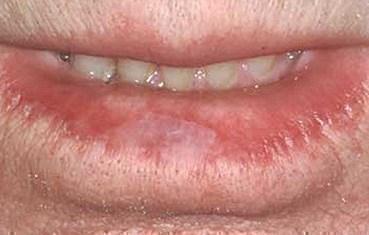 Actinic cheilitis - Wikipedia