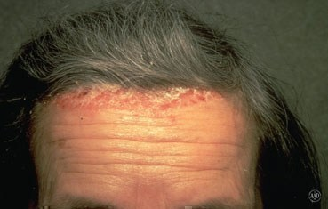 scalp psoriasis on forehead