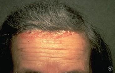 psoriasis scalp remedies