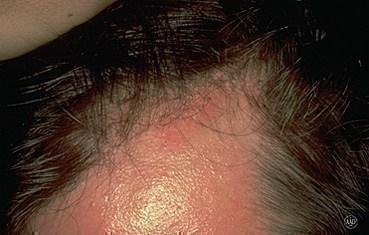 Histoplasmosis  Wikipedia