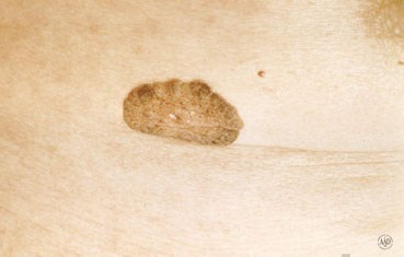 Seborrheic keratosis: This non-cancerous growth can grow quite thick ...