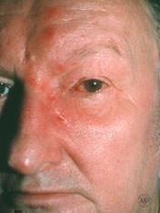 shingles affects man's eye